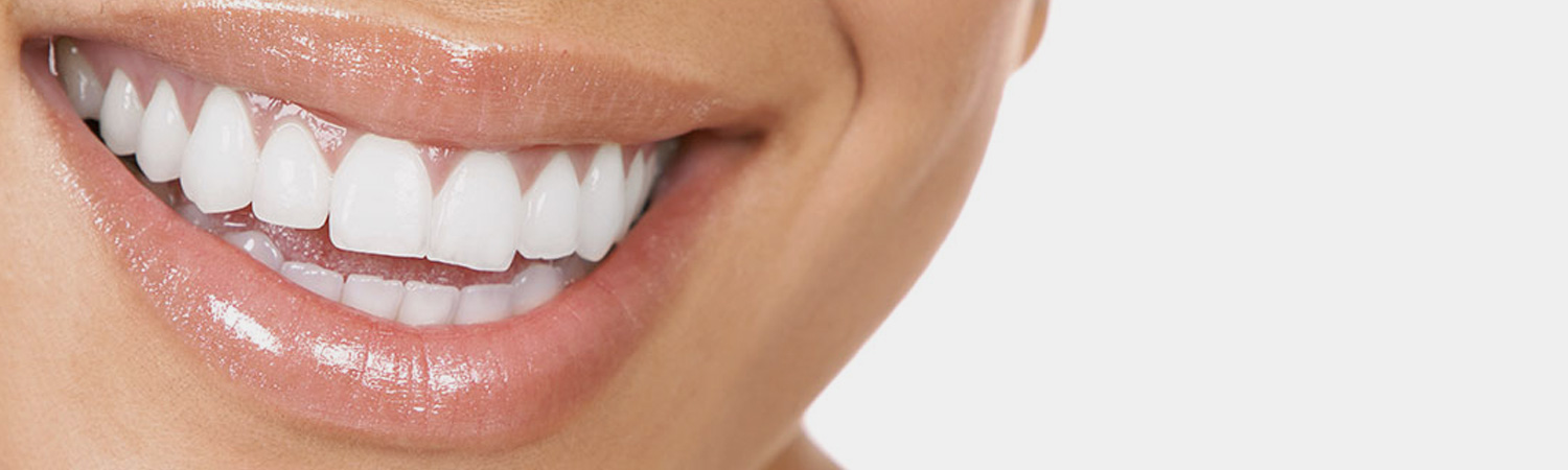 Snap-On Smile Reading, MA | First Dental Associates