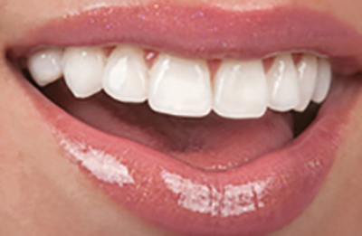 Dental Veneers Are Like Fake Nails For Your Teeth