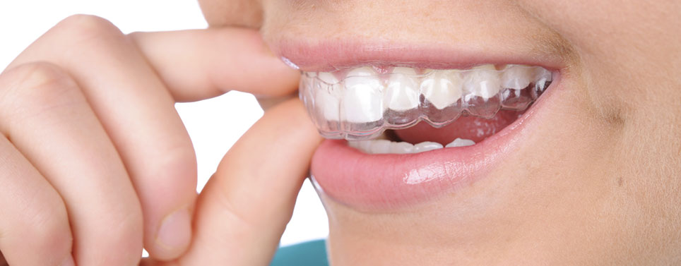 Invisalign Reading, MA Dentist | First Dental Associates